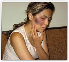Another Iranian woman beaten for her faith