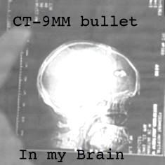 Bullet lodged in Matthew's brain