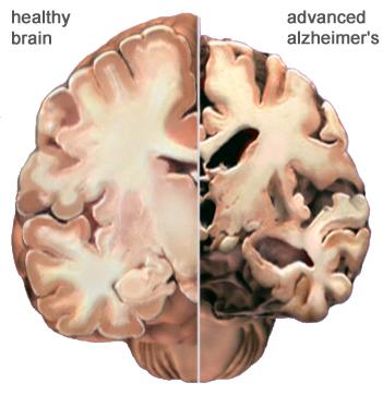 AD_brain_changes