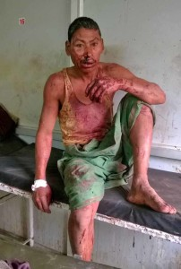 One of the victims of attack in Assam, India. (Morning Star News)