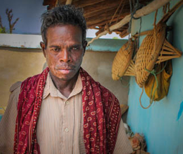 A man from the Korwa people group in Chhattisgarh state put his faith in Christ after church prayers healed him of painful sores. (Christian Aid Mission)