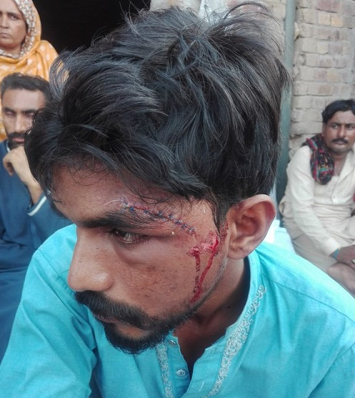 A Christian beaten in Khushal Town.